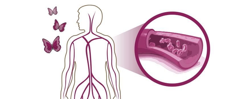 Cuidado del colesterol y la anemia